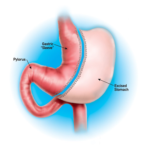 gastric bypass versus sleeve gastrectomy